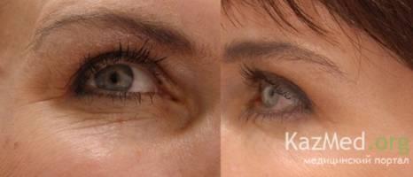 Результат до и после - морщины вокруг глаз после 40